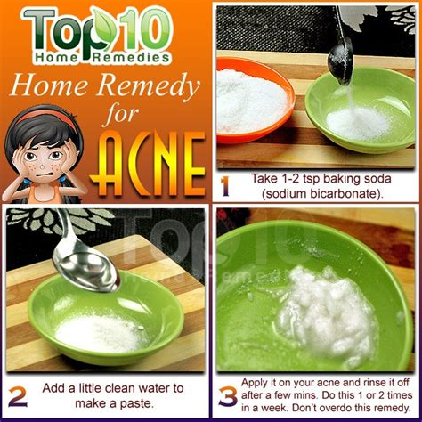 acne home remedy picture 5