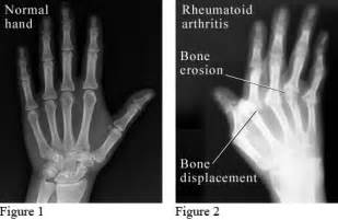 joint pain swollen fingers weght loss low grade picture 13