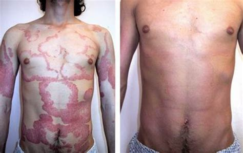 genital skin problems picture 9