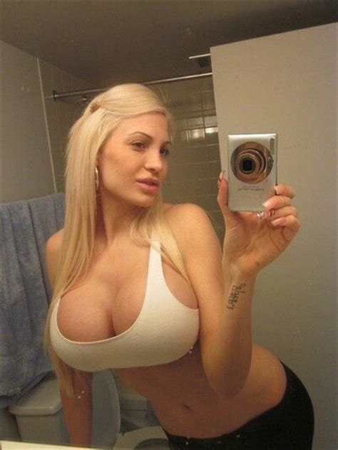 did amy anderssen get a breast reduction picture 6