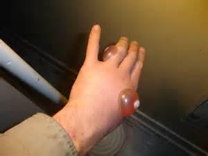 small wart razor picture 2