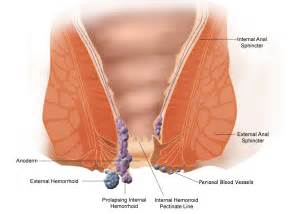 hemorrhoid treatment picture 1