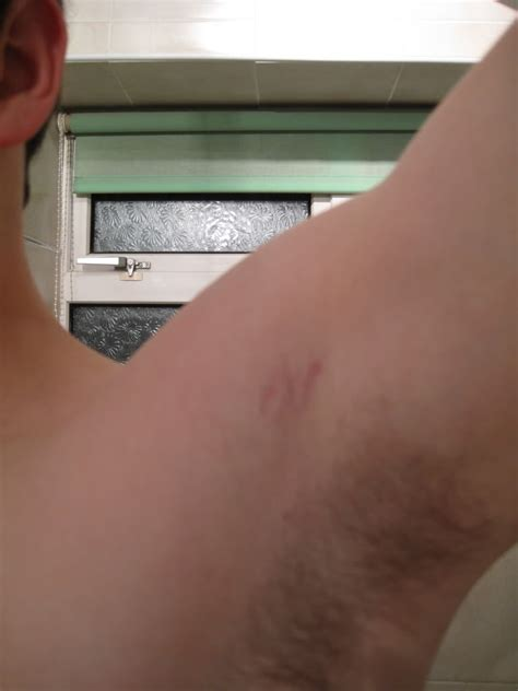 what does it mean when a stretch mark picture 7