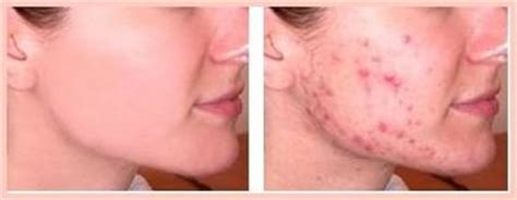 how to get rid of zits and acne picture 6