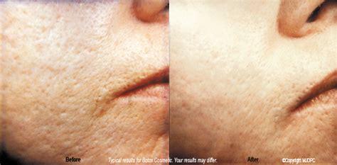m pill for acne or scars picture 5