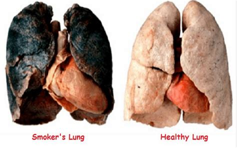 affects of cigar smoke on lung tissue picture 6
