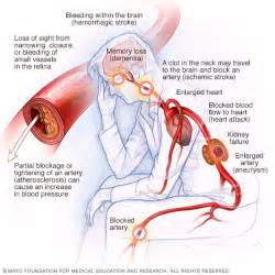 Infections and blood pressure increase picture 5