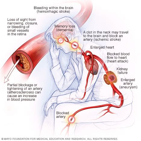 can a fever cause blood pressure to rise picture 11