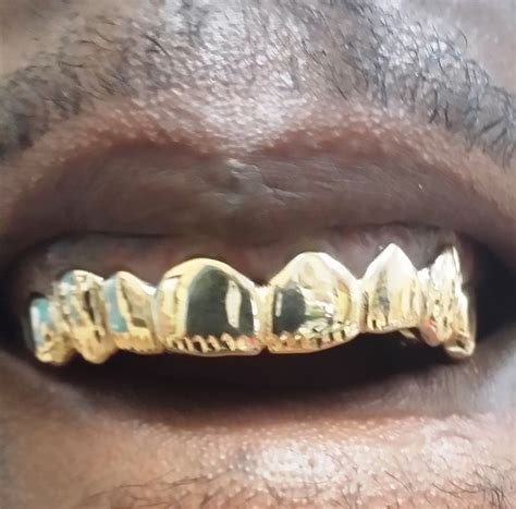 fulton street gold teeth picture 5