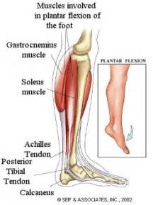 Gastrocnemis muscle tear treatment picture 2