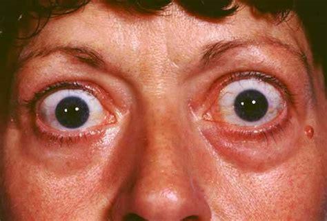 eye disease thyroid picture 7
