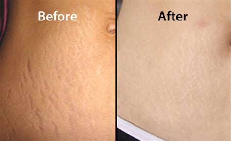 stretch mark and tattoo cream removal picture 9