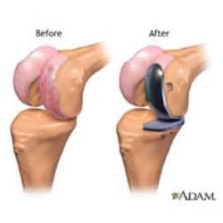 overstuffed knee joint replacement repair picture 3