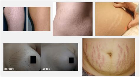 laser removal of stretch marks picture 3