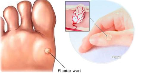 genital warts treatment in bangladesh picture 9