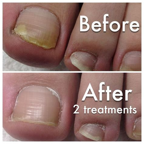 nail fungus laser treatment oklahoma picture 2