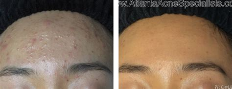 boston doctors that specialize in acne care picture 8