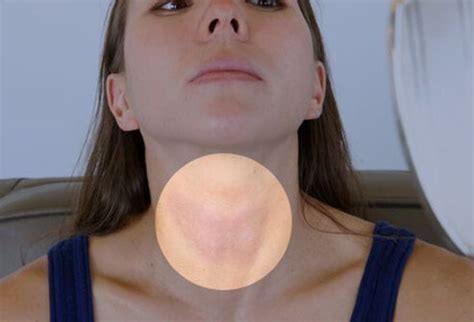 can thyroid cause ps in head picture 8