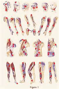 knots in skin fibromyalgia picture 9