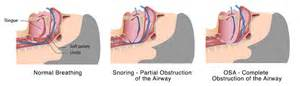 obstructive sleep apnea not snoring picture 9