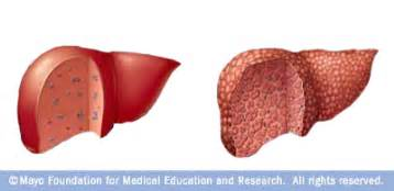 liver with cirrhosis picture 7