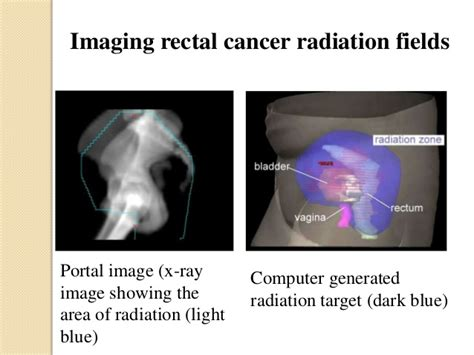 Colon cancer radiation treatment picture 9