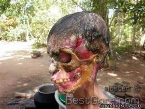 are there diseases that eats skin picture 3