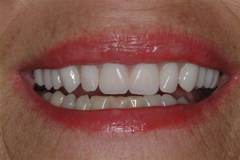 different types of false teeth picture 2