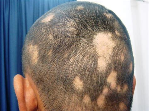 alopecia hair loss every where picture 14