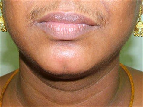 hair on face genital disturbances for urdu picture 5
