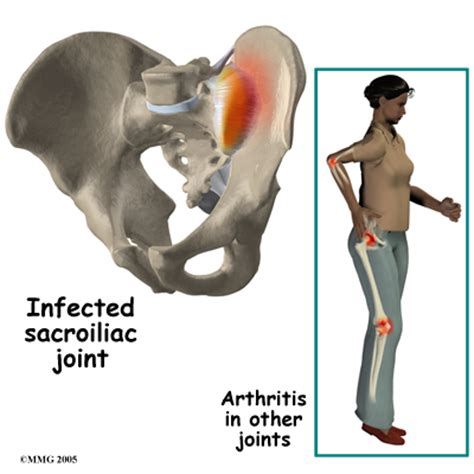 herpes si joint pain picture 2