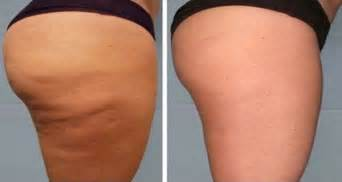 has anyone gotten rid of cellulite picture 13