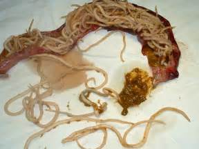 intestinal worm infections picture 2