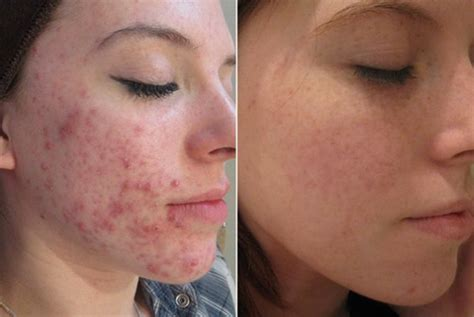 acne scarring treatment picture 19