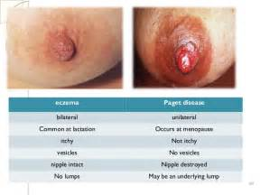 skin infections around areola picture 2