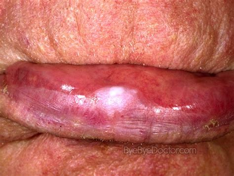 leukoplakia in the mouth lips picture 10