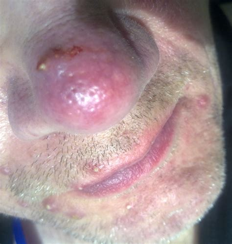 acne rosecea picture 11