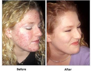 acne free reviews picture 2