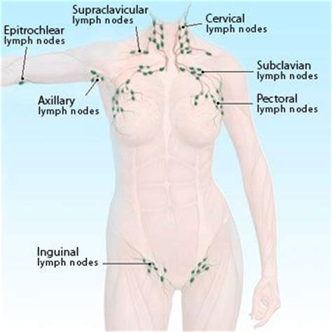 can hashimoto's thyroiditis cause swelling axillary lymph nodes picture 6