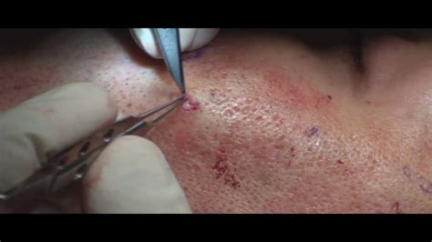 subcision acne scars california picture 7
