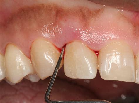 bone loss in teeth picture 7
