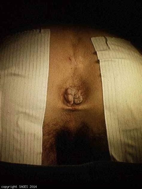 removal of external hemorrhoids picture 1