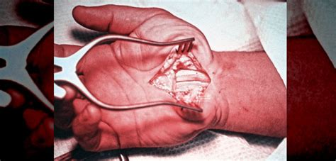 medal carpal joint picture 6
