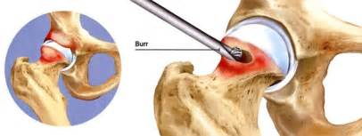 joint replacement hip and knee pain picture 15