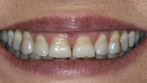 antibiotic discoloring teeth picture 5