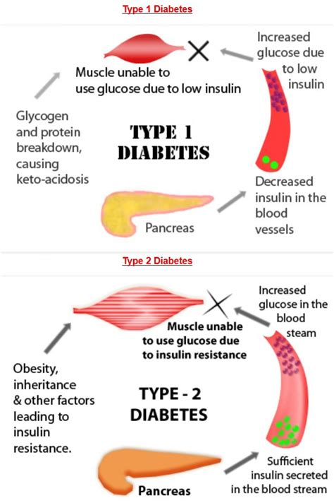 causes of low sugar for a diabetics what picture 7