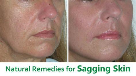 stop sagging skin natural herbs picture 3