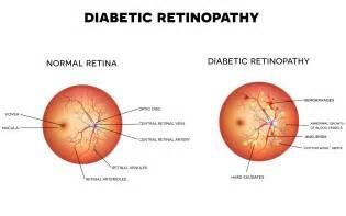 diabetics eyes picture 11