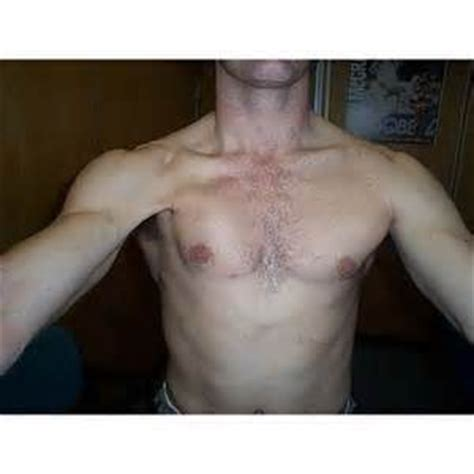 chest muscle strain picture 10