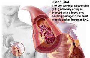 blood clot in head symptoms picture 14
